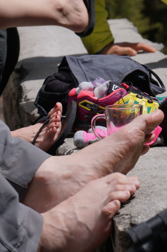 ...Especially when your feet look like this. Note; The painted nails are not mine. (Photo: Justin Merle)